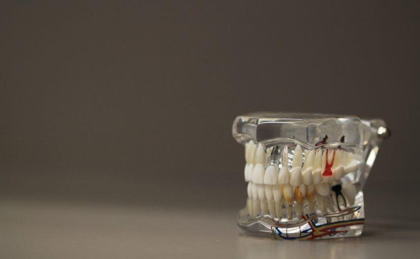 Złe postępowanie odżywiania się to większe braki w jamie ustnej a także ich brak